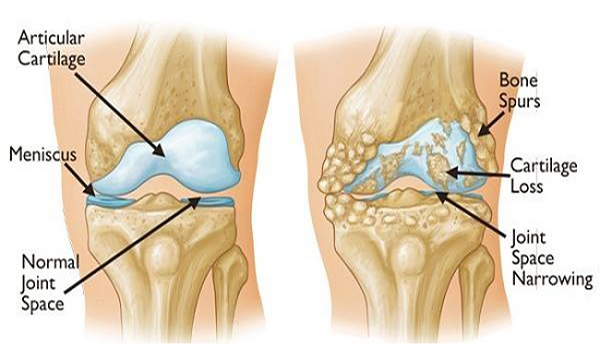 rebuild-your-bones-and-joints