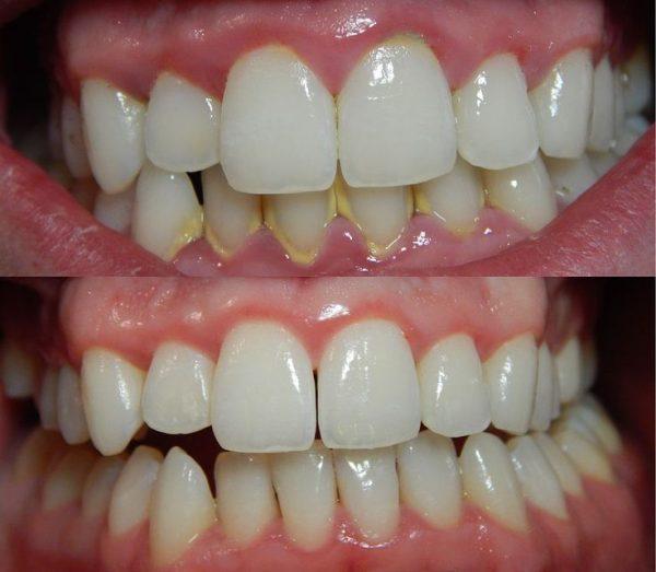 887ce75a896a2616fc2a8b1da2e5f6b5--dental-procedures-dental-problems