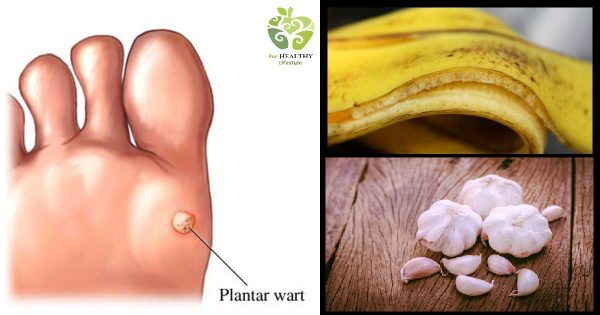 Heres-How-You-Can-Remove-Warts-Naturally