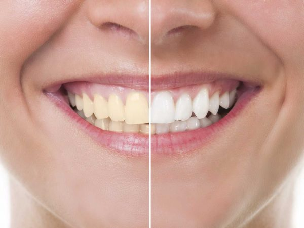 a-dentist-reveals-the-most-effective-way-to-whiten-your-teeth