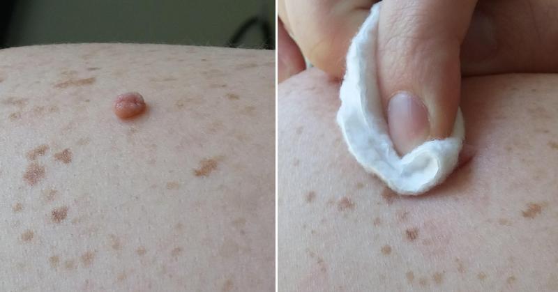 skin-tag-FI
