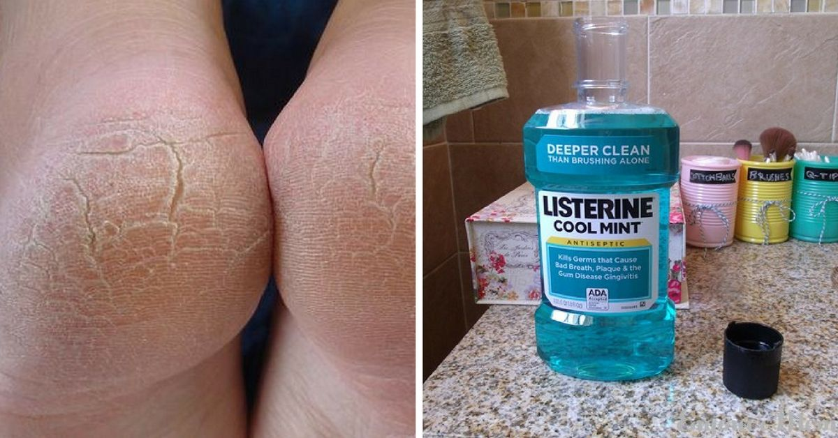10-amazing-uses-for-listerine-that-every-woman-should-know