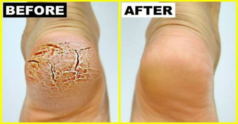 Cure-Cracked-Heels-Very-Fast-With-This-Powerful-Treatment-770x403