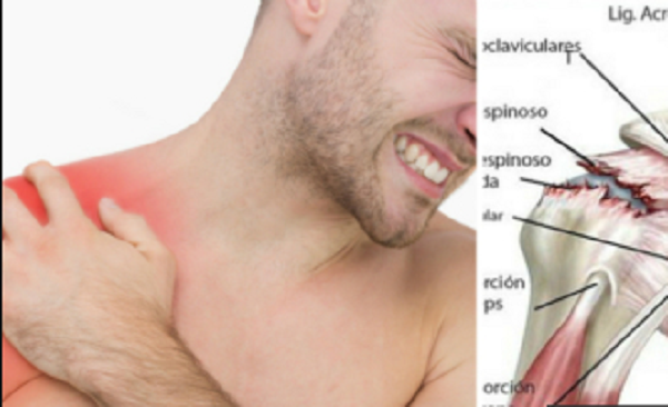 DO YOU HAVE PAIN IN YOUR SHOULDER? IT'S CALLING TENDINITIS AND WE GIVE YOU TIPS TO RELIEVE IT