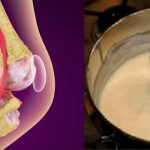 This Recipe is Going Crazy in The World! Heal Your Knees and Rebuilds Bones and Joints Immediately