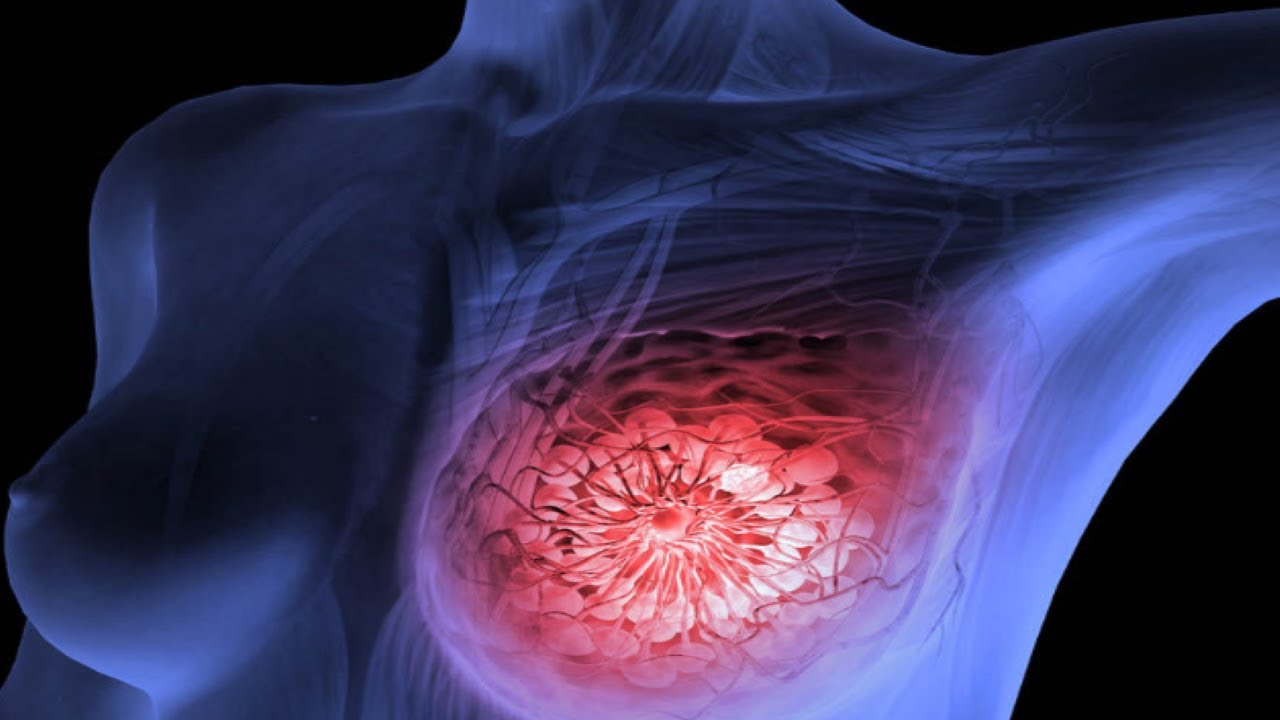 We-Drink-It-Daily-But-Don't-Know-That-It-Causes-Breast-Cancer