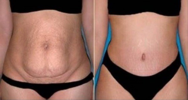 Boil-This-Herb-for-10-Minutes-Use-It-Only-Once-a-Day-and-In-Only-20-Days-All-of-Your-Belly-Fat-Will-Disappear-1